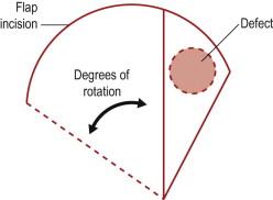 Basic Principles Of Rotational