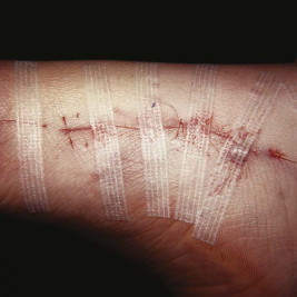 Removal of Sutures - an overview | ScienceDirect Topics