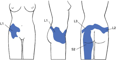 Buttock - an overview | ScienceDirect Topics
