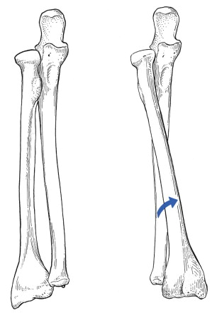 Pronation - an overview | ScienceDirect Topics