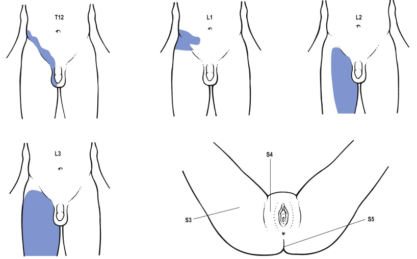 Inguinal Pain - an overview | ScienceDirect Topics