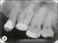 Root Canal - an overview | ScienceDirect Topics
