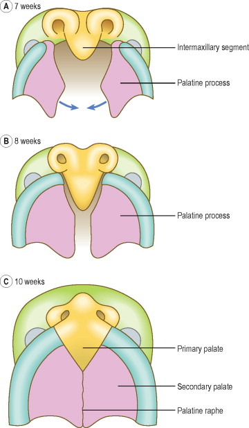 Vascular Pattern in Embryos with Clefts of Primary and Secondary Palate