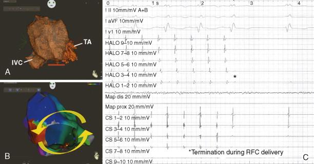 Atrioventricular Reentrant Tachycardia - an overview | ScienceDirect