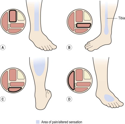 Anterior Tibial Syndrome - an overview | ScienceDirect Topics