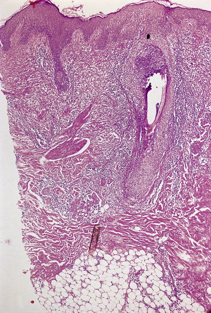 Folliculitis Decalvans - an overview | ScienceDirect Topics