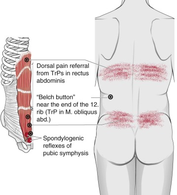 Pubis Symphysis - an overview   ScienceDirect Topics