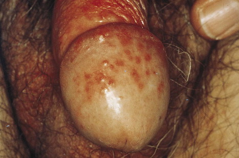 Groovy Vaginal Pruritus An Overview Sciencedirect Topics Interior Design Ideas Tzicisoteloinfo