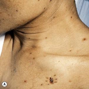 Eosinophilic Folliculitis On Face