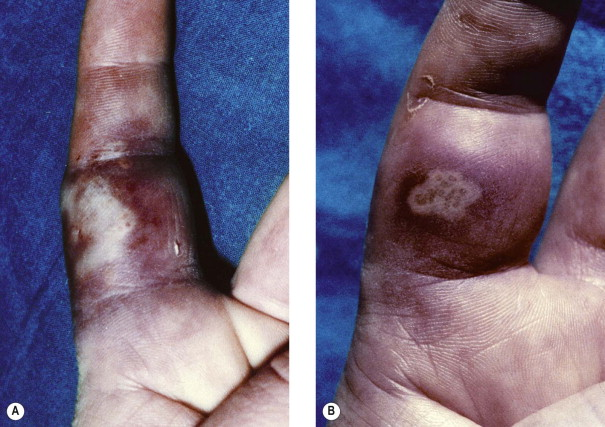 Hand Infection - an overview | ScienceDirect Topics