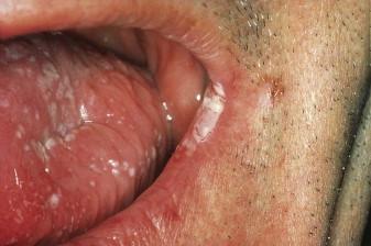 Angular Cheilitis - an overview | ScienceDirect Topics