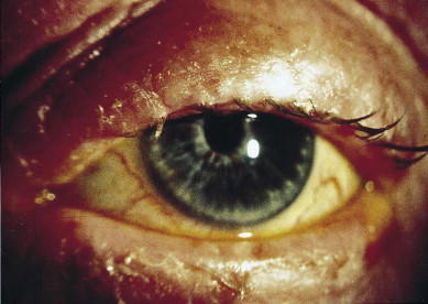 Blepharitis - an overview | ScienceDirect Topics