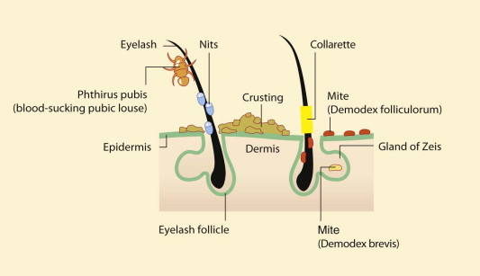 demodex brevis life cycle