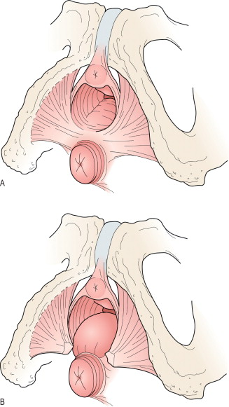 Bumps where stitches were in vagina situation familiar