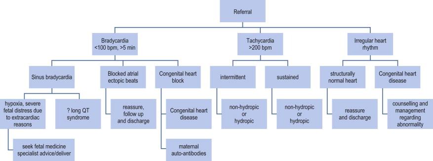 Tachycardia - an overview | ScienceDirect Topics