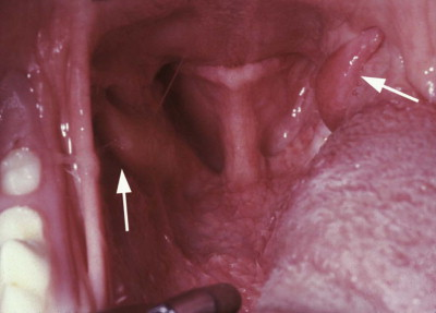 Tonsil Carcinoma - an overview   ScienceDirect Topics