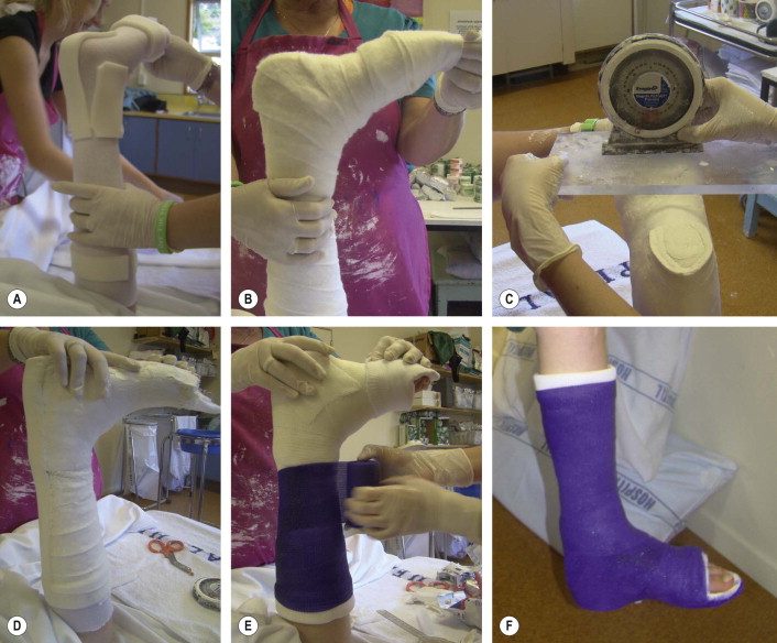 Walking Cast - an overview | ScienceDirect Topics