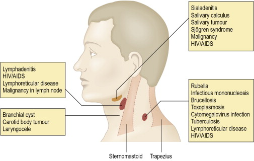 Submental Lymph Nodes - an overview | ScienceDirect Topics