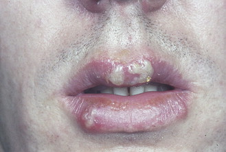 differential diagnosis for genital herpes