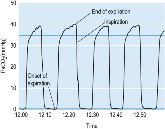 Capnography - an overview | ScienceDirect Topics