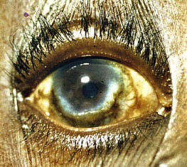 disciform keratitis