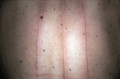 Pressure Urticaria - an overview | ScienceDirect Topics