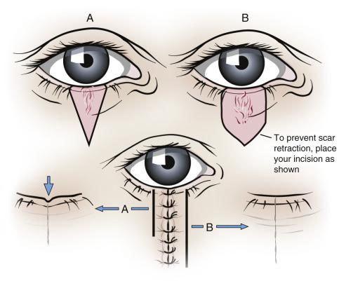 periorbital hematoma left eye