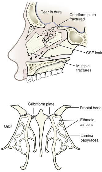 Nose Fracture - an overview | ScienceDirect Topics