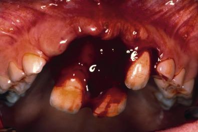 Dental Trauma - an overview | ScienceDirect Topics