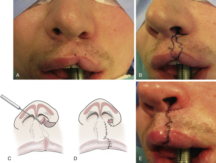 Cupid's Bow - an overview | ScienceDirect Topics