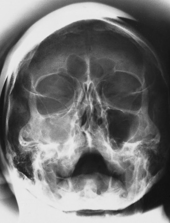 Maxilla Sinusitis - an overview | ScienceDirect Topics