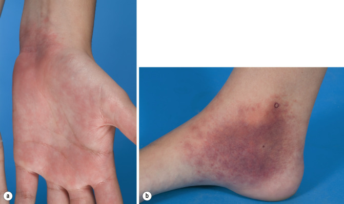 Papular Purpuric Gloves and Socks Syndrome - an overview
