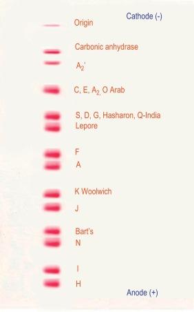 Hemoglobin Electrophoresis - an overview   ScienceDirect Topics