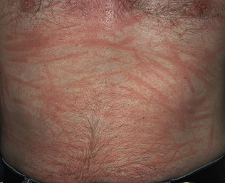Physical Urticaria - an overview | ScienceDirect Topics