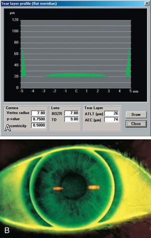 Fluorescein - an overview | ScienceDirect Topics