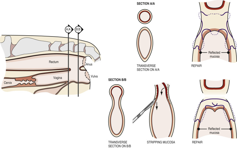 Perineum Injury - an overview | ScienceDirect Topics