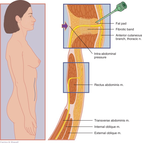 Cutaneous Nerve An Overview Sciencedirect Topics