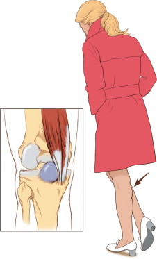 Popliteal Cyst - an overview | ScienceDirect Topics