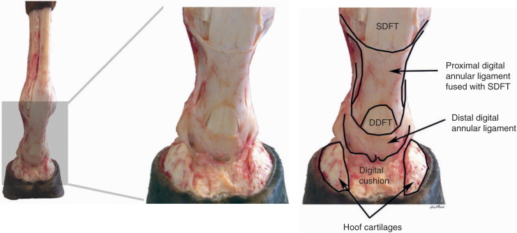 Annular Ligament Of Radius An Overview Sciencedirect Topics