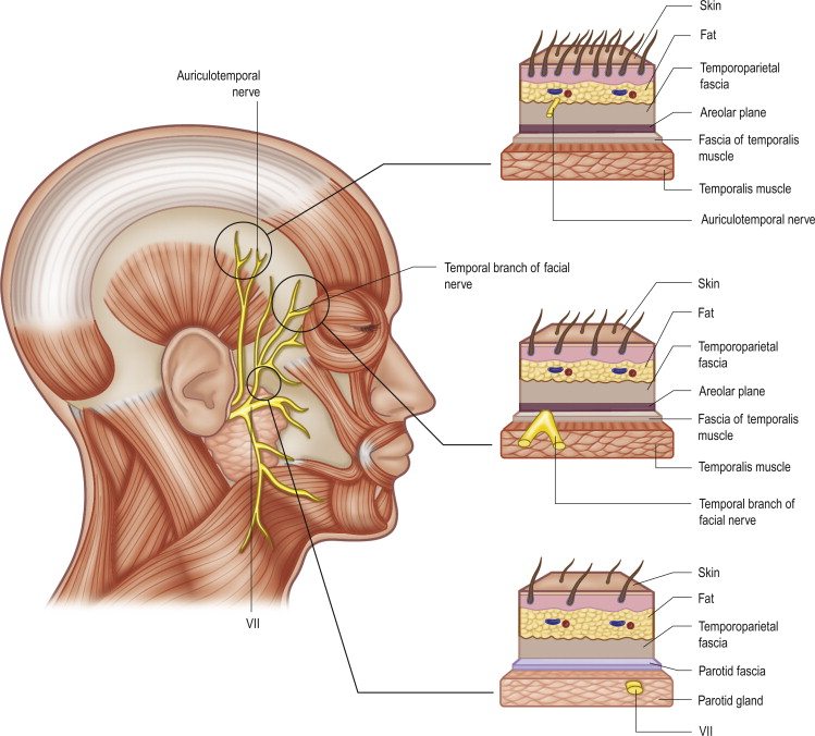 Temporal Branches Of The Facial Nerve An Overview Sciencedirect