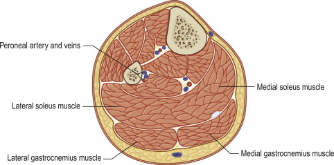gastrocnemius muscle an overview sciencedirect topics