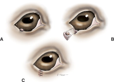 Eyelids - an overview | ScienceDirect Topics