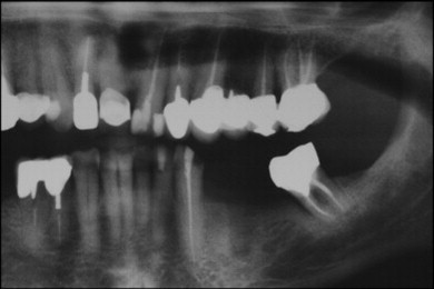 Toothache - an overview   ScienceDirect Topics