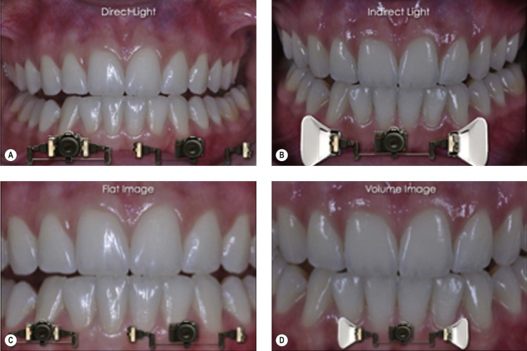 Dental Radiography - an overview   ScienceDirect Topics