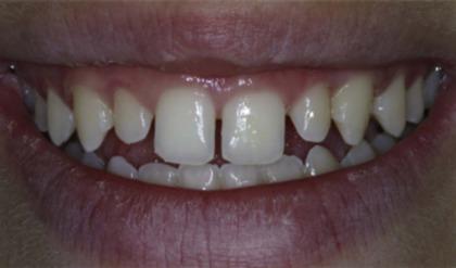 Gingivoplasty - an overview | ScienceDirect Topics