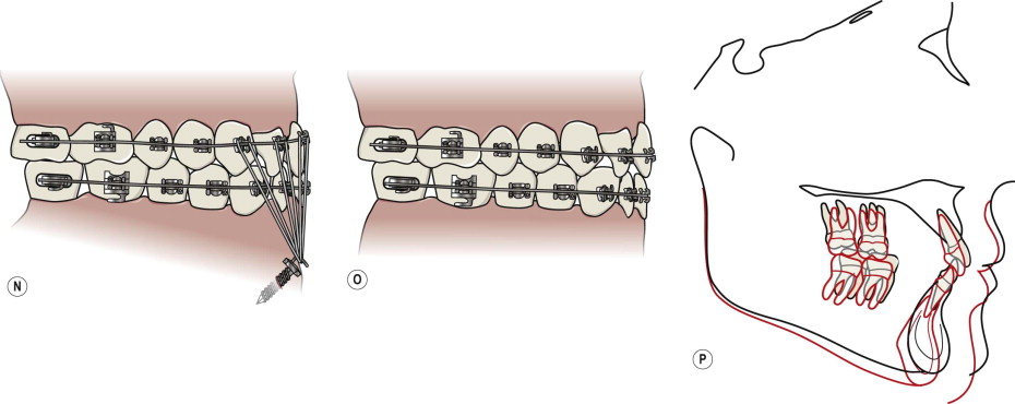Dental Bridge - an overview | ScienceDirect Topics on