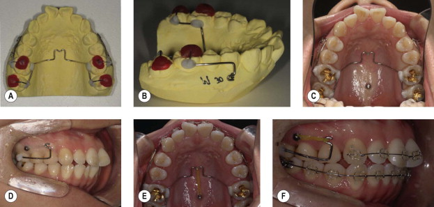 Maxillary First Molar An Overview Sciencedirect Topics