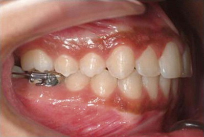 Third Molar - an overview | ScienceDirect Topics