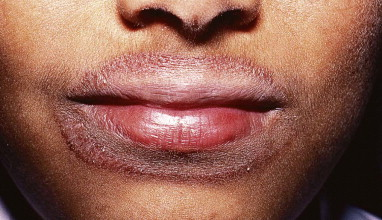 Perioral Dermatitis - an overview | ScienceDirect Topics