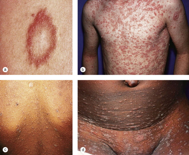 Pityriasis Rosea An Overview Sciencedirect Topics
